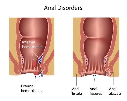 Deep inside the anus