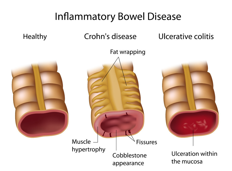 crohn's disease : gicare, Skeleton