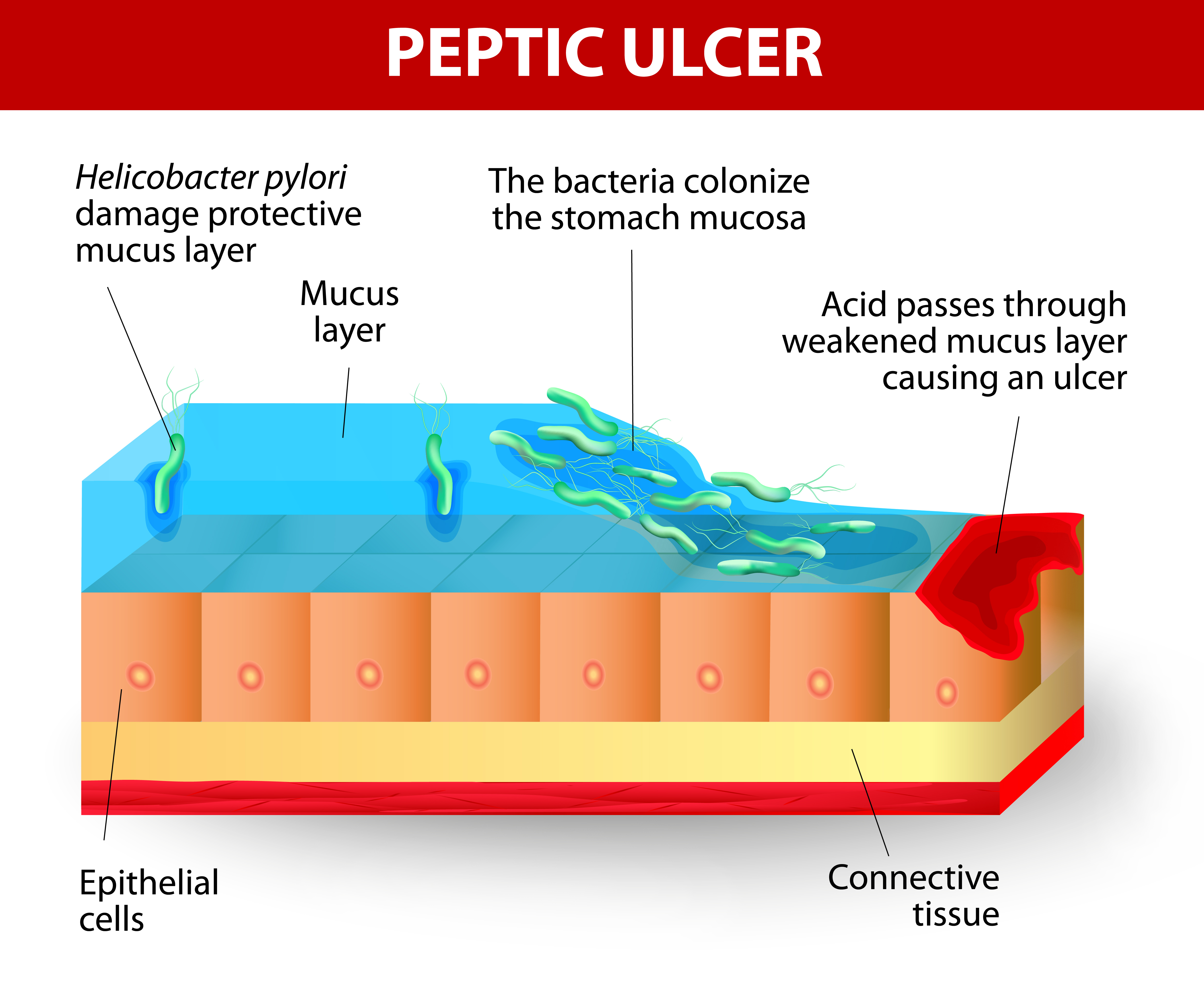 peptic ulcer disease A peptic ulcer is a break in the lining of the stomach, extending through the muscularis mucosae to the deeper layers of the bowel wall whilst they may technically appear anywhere in the gastrointestinal tract, they are most often located on the lesser curvature of the proximal stomach or the first part of the duodenum.