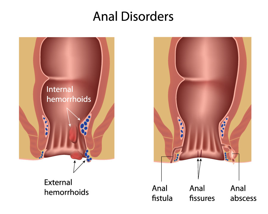 Anal yeast infection symptoms