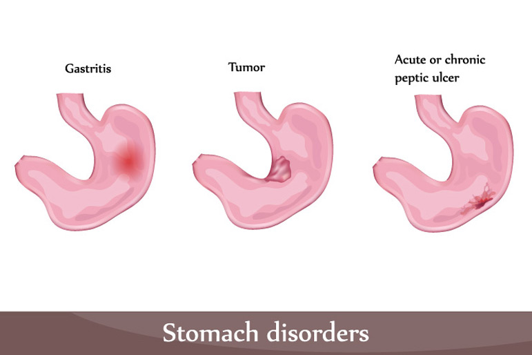 over the counter medication for acute gastritis