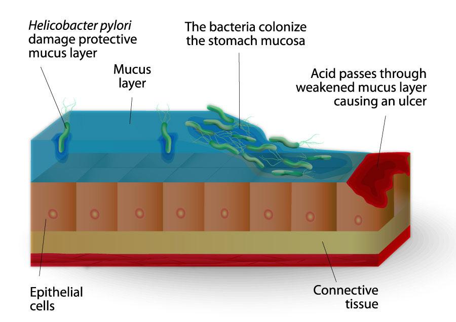 helicobacter pylori and ibuprofen