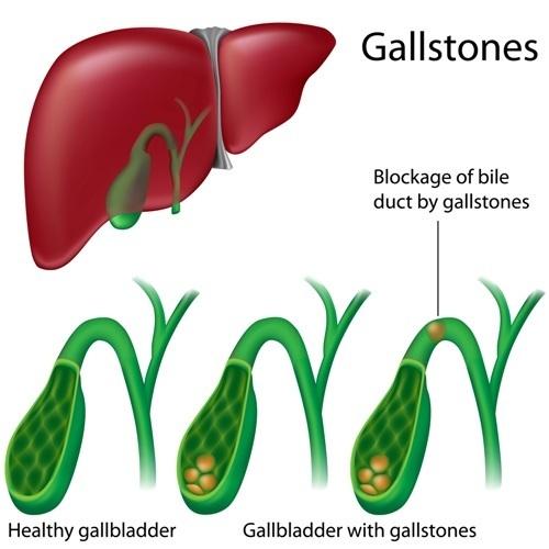 Gallstones | Jackson Siegelbaum Gastroenterology